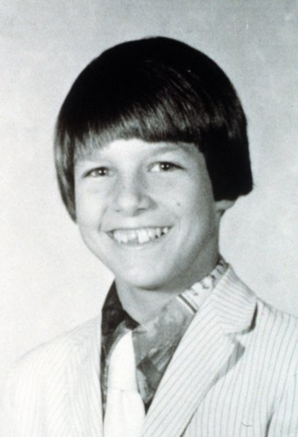 In his young years Tom Cruise had problems with upper teeth